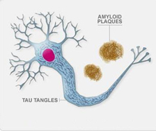 Nerve cell in Alzheimer's disease:  Nerve cells contain tangles of tau.  Outside of the cell, amyloid plaques are found.  Both of these proteins can cause damage, leading to a loss of communication between nerve cells.